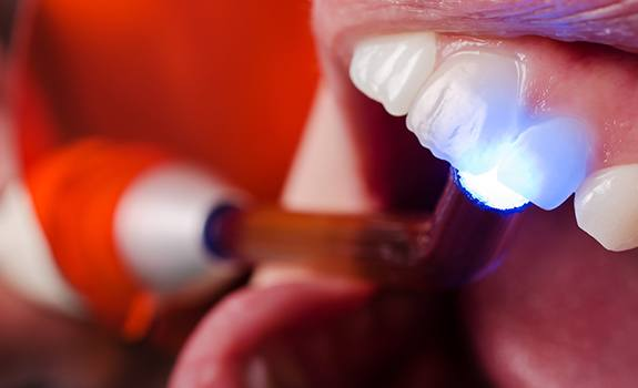 Patient receiving cosmetic dental bonding