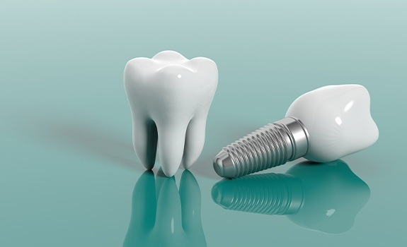 Model of a natural tooth and dental implant supported replacement tooth